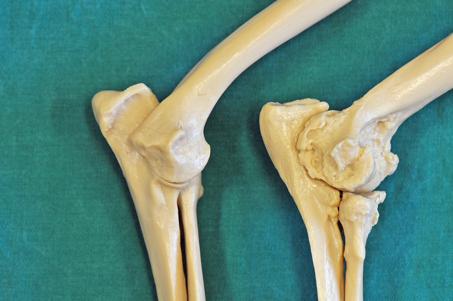 ostheoarthritis